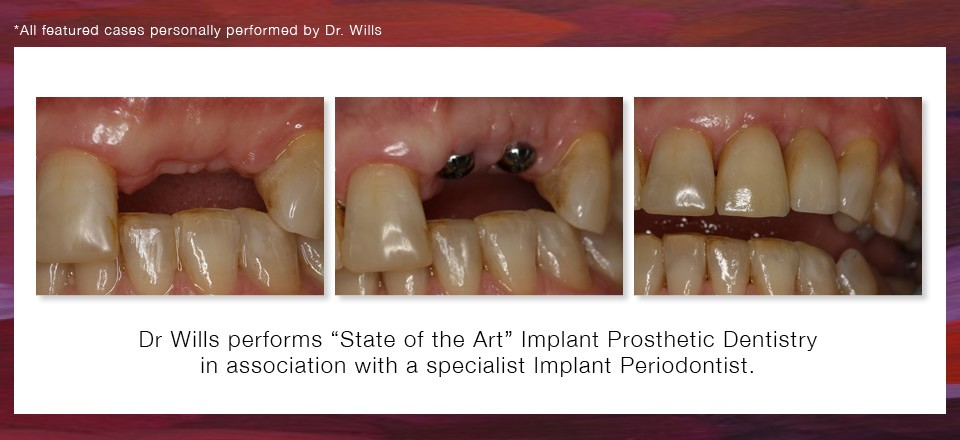Implant Dentistry 2