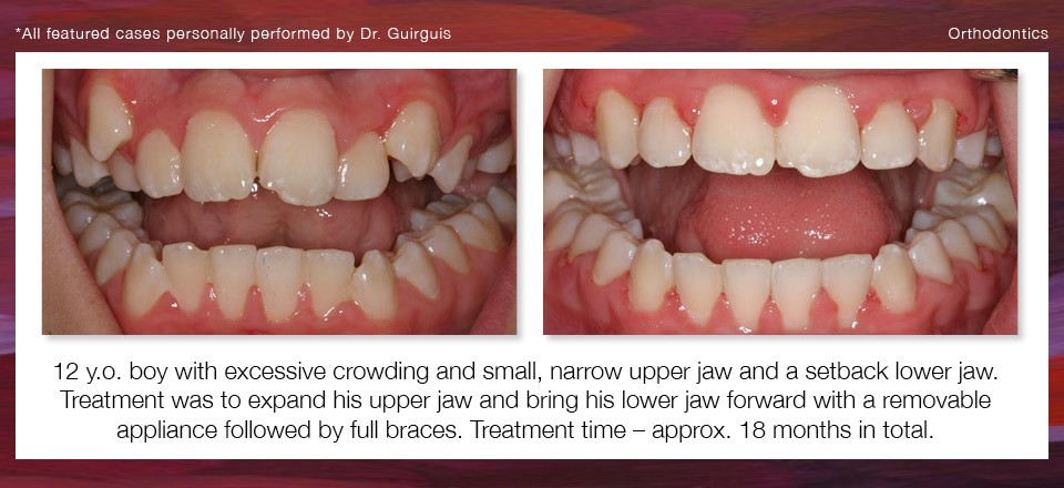orthodontics_1