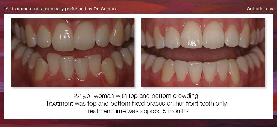 orthodontics_2
