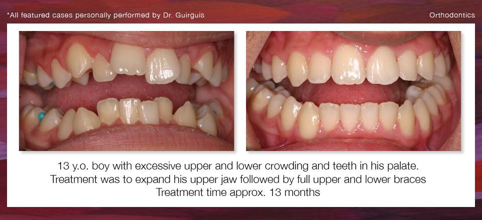 orthodontics_3