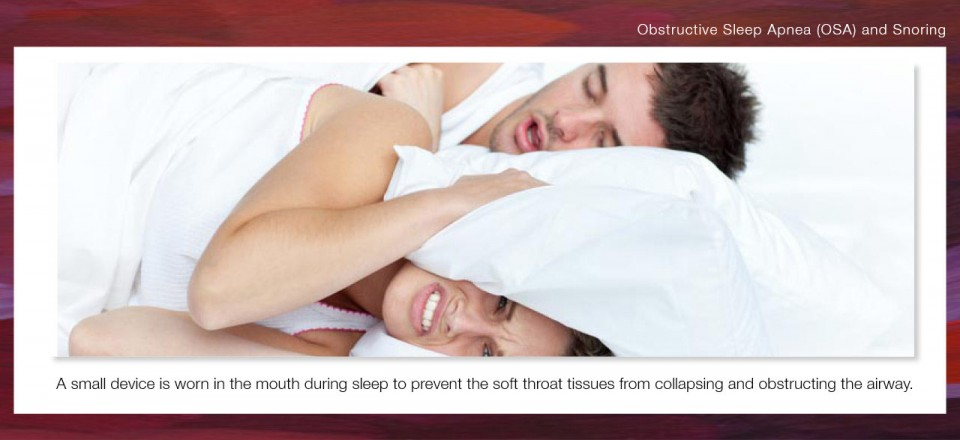 Obstructive Sleep Apnea (OSA) and Snoring